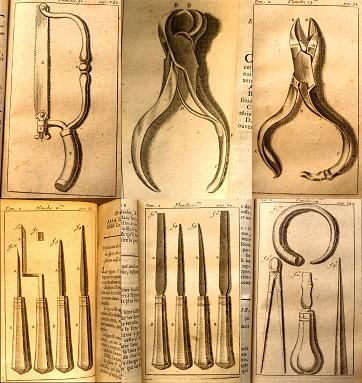 Surgical instruments made by Pierre Fauchard during the 18th century.